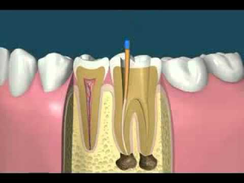 River Road Dental: Root Canal Treatment