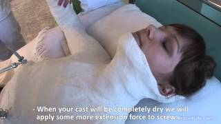 Repeat youtube video Stagnara plaster cast