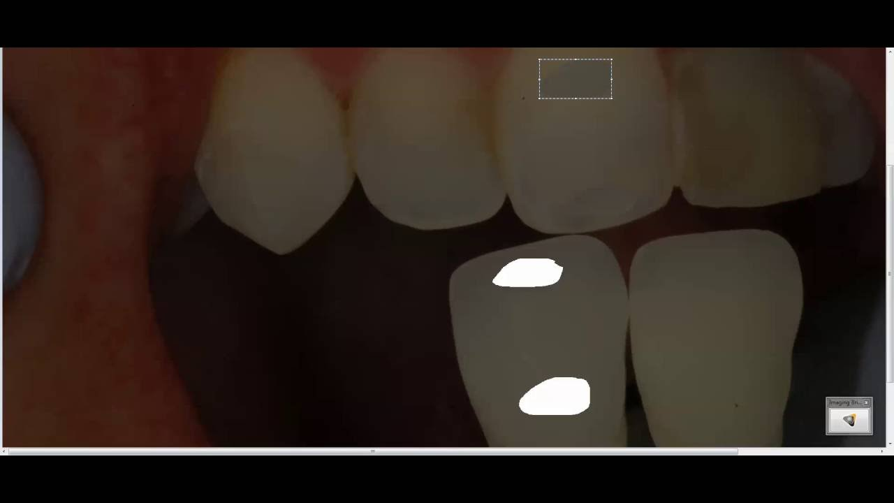 Dental shade determination - How to pick the right color - Bauer Smiles