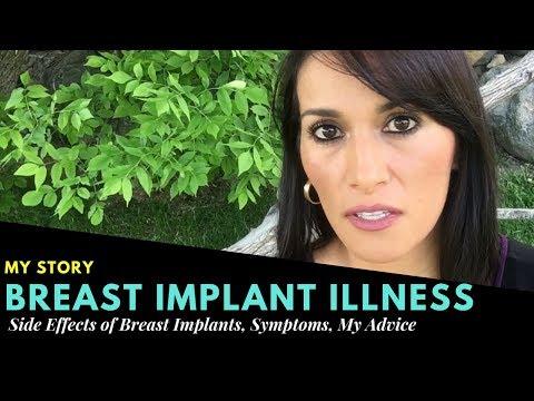 Breast Implant Illness- Dangers of Implants, Symptoms, Advice- My Story