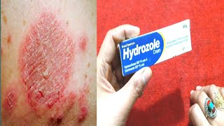 Hydrozole Cream Benefits And Uses .Stop  Skin itching, Fungl . Khooni Kharish By Sanam .