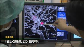 脳卒中について正しく理解する【医TV】