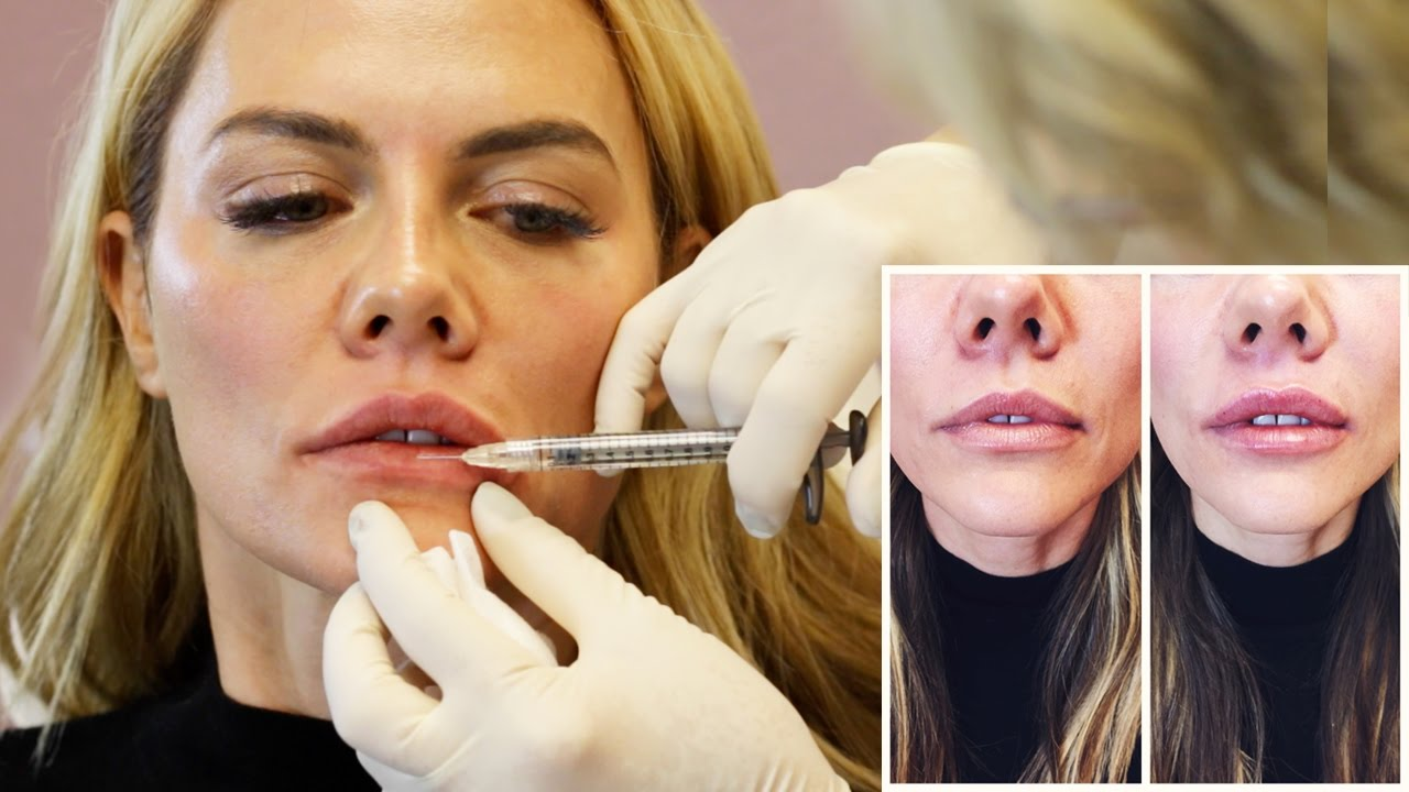Natural Lip Injection Experience and Botox from Doctor Cynthia Cote