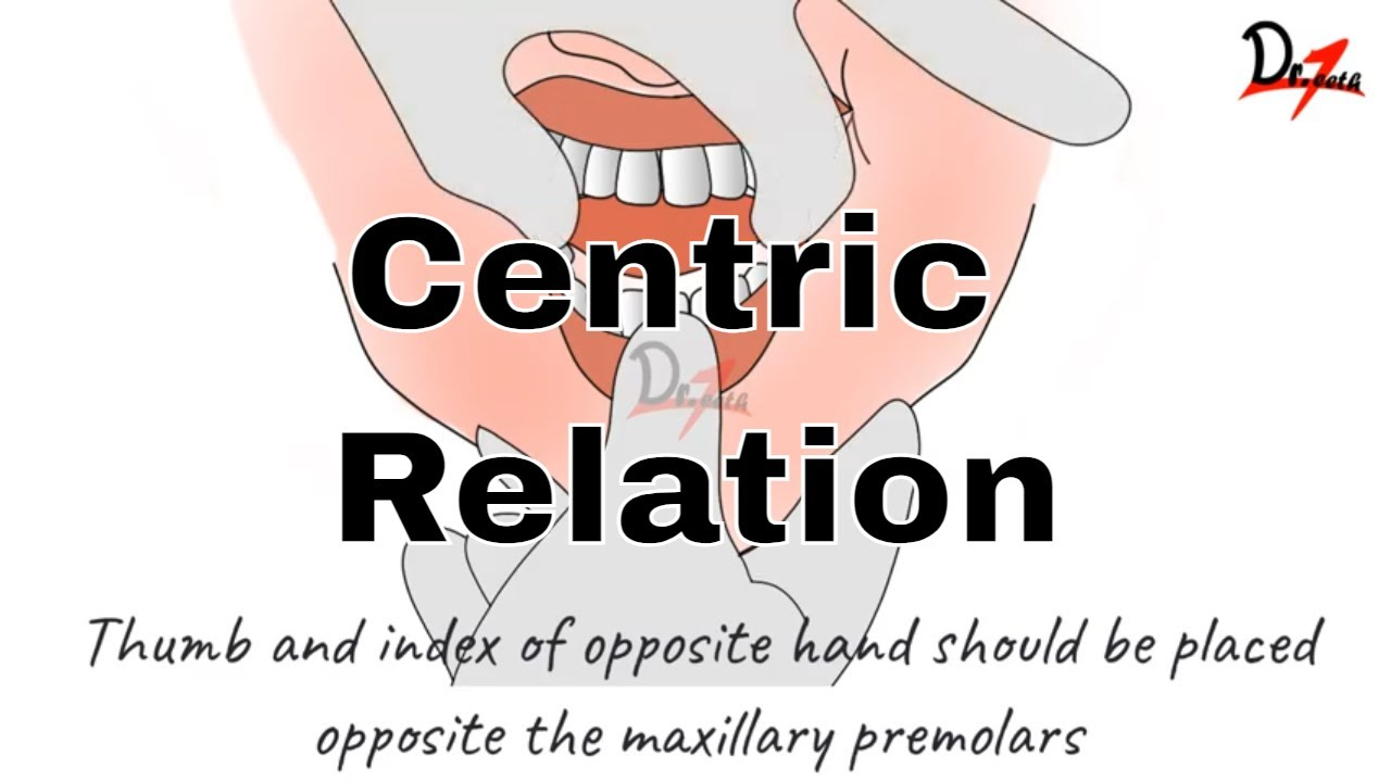 How to Determine Centric Relation? PROSTHODONTICS