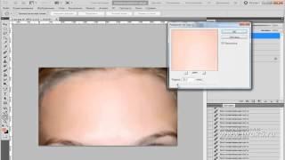 Adobe Photoshop (фотошоп) CS5, урок 3 Удаление прыщей