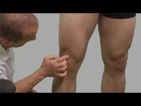 Kashpirovsky pikkelysömör kezelése