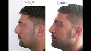Rhinoplasty Before After -  Result - Ozge Ergun MD, Aesthetic Plastic Surgeon
