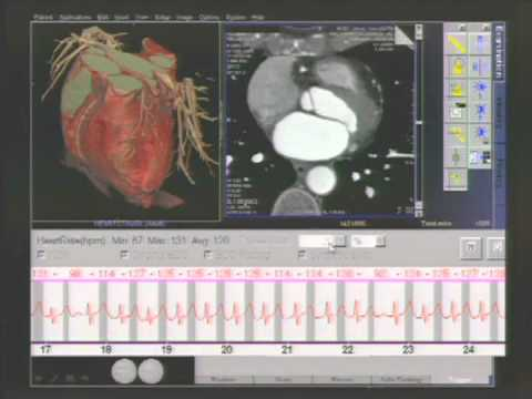 65   Advanced Cardiac CT Image Acquisition Techniques thumbnail