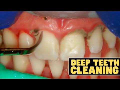 Teeth Cleaning vs Deep Cleaning   Dentist Reviews How Teeth Are Cleaned!