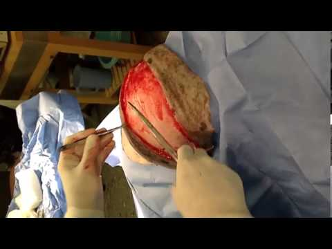 Veterinary Surgeon Removes Massive Lipoma (Fatty Tumor) from a Dog
