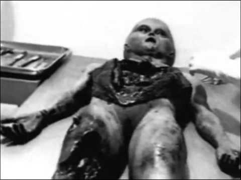 Alien Autopsy   Roswell UFO Crash 1947 Original footagedocumentary