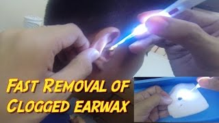 Fast Removal of Clogged Earwax- Instant Relief
