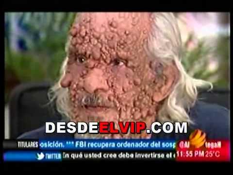 El Hombre Burbuja De Republica Dominicana