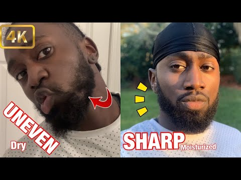 FOR BLACK MEN BEARD TIPS | What I Learned In 4 Months