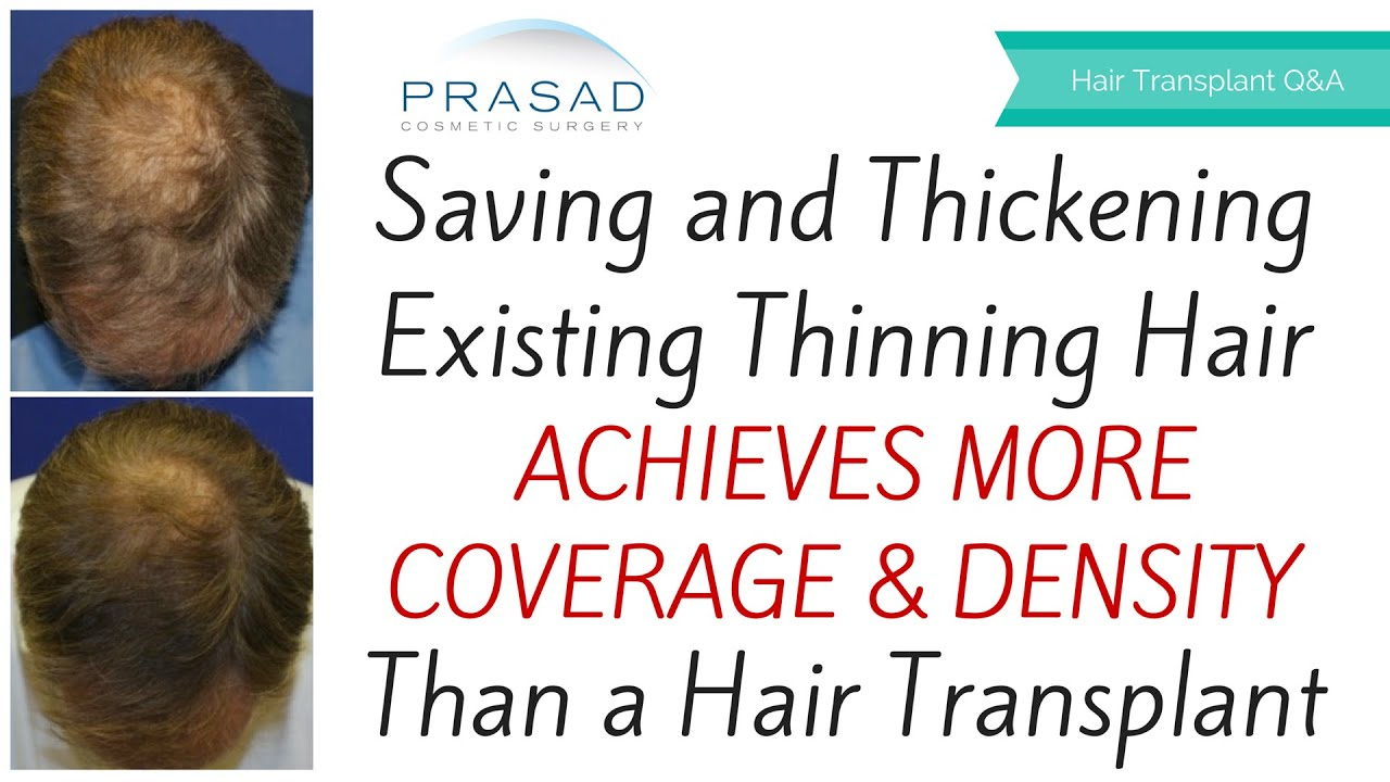 Stem Cell Hair Loss Treatment Saving And Thickening Thinning Hair