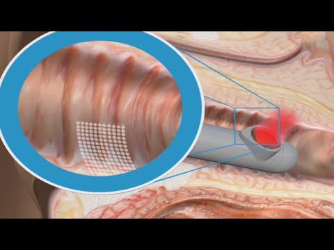 Dispareunia e incontinencia urinaria - Tratamiento láser (15110)
