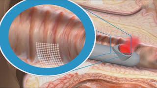 Dispareunia E Incontinencia Urinaria   Tratamiento Laser 15110