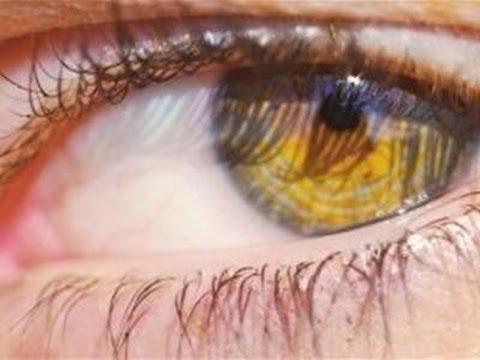 How To Treat An Eye Stye Youtube