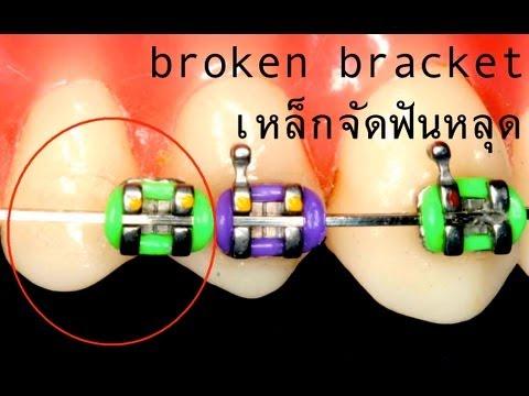 เหล็กจัดฟันหลุด (Broken braces)