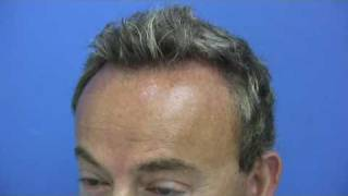Dr Hasson Hair Transplant - 4580 Grafts - 1 Session