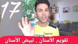 تجربتي مع تقويم الأسنان الشفافة الانفزلاين رقم ١٧ .. تبيض الأسنان