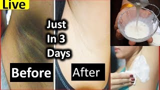 Underarms Whitening At Home & Skin Care