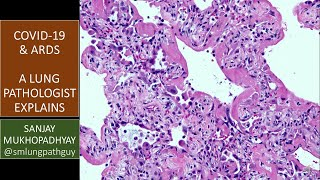 COVID-19 can kill: a lung pathologist explains what ARDS means and why it's important