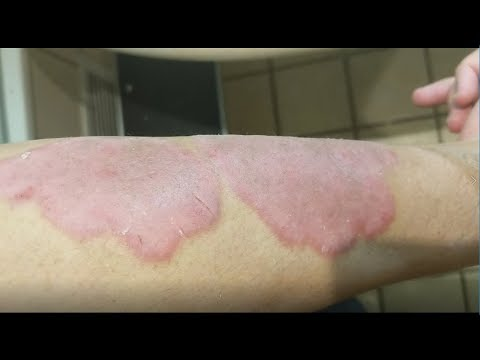 DEAD SEA:  Treatments And Day 2 Results [Psoriasis]