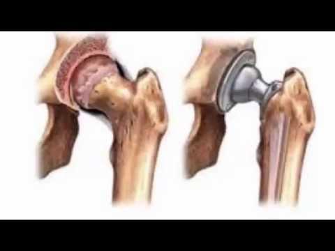 Артрит коленного сустава: лечение (+ народные средства