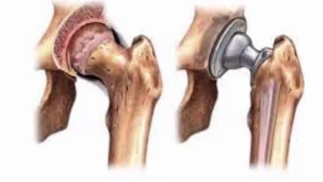 Грозде при артрит