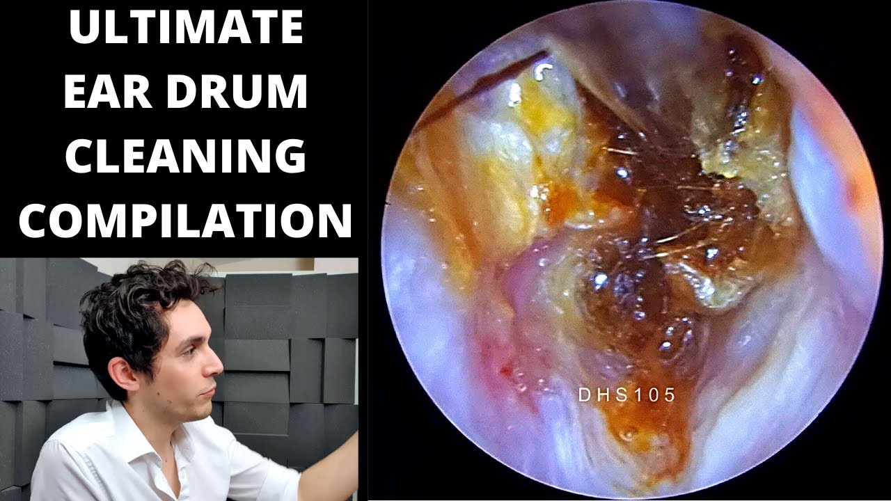 The ULTIMATE EAR DRUM Cleaning Compilation