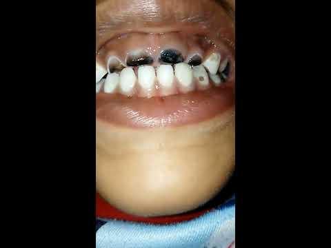 Chocolate Teeth