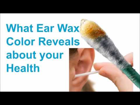What Earwax Color Reveals About Your Health