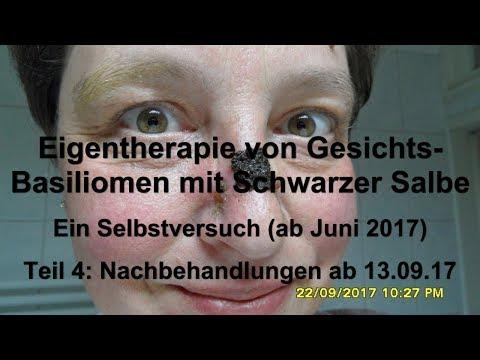 Eigentherapie von Gesichtsbasiliomen mit Schwarzer Salbe. Beginn: Juni 2017, Dokumentation, Teil 4