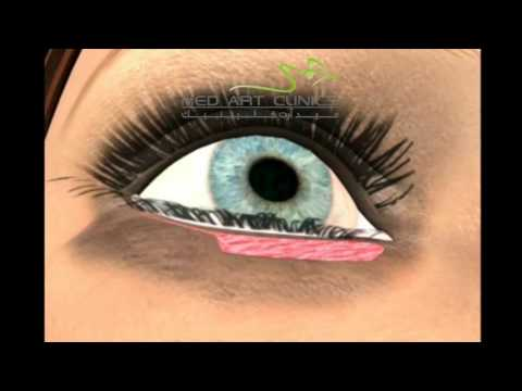 8ff1faf88 Lower Blepharoplasty - عملية تجميل الجفون - YouTube