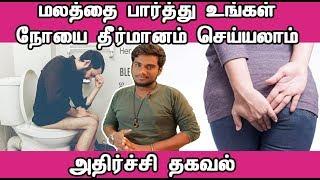 மலத்தை பார்த்து உங்கள் நோயை தீர்மானம் செய்யலாம் அதிர்ச்சி தகவல் | Tamil Health News