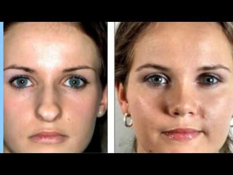 855 622 4466 Best Rhinoplasty Surgeon Memphis Tn Top Nose Job Surgeons Tennessee Youtube