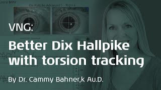 VNG: Improve Dix Hallpike accuracy with 3D eye movement recordings