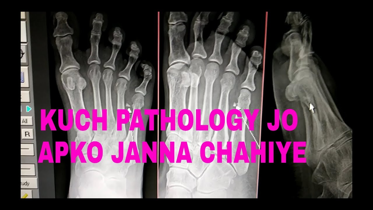 A PATHOLOGY FOR EVERY SINGLE XRAY TECHNOLOGIST NEED