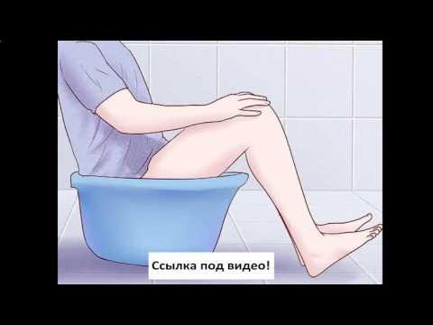 геморрой ульяновск