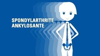 Qu'est-ce que la spondylarthrite ankylosante?