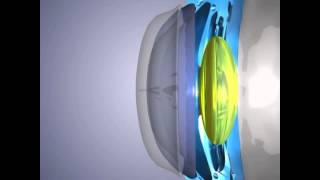 Капли для улучшения зрения при близорукости
