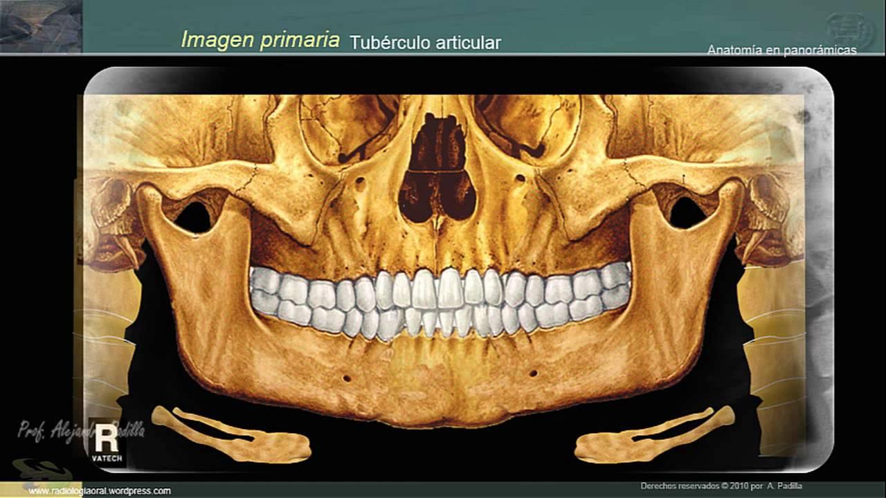 Estructuras anatómicas en la radiografía panorámica - YouTube