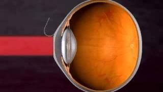 видео ночные контактные линзы для коррекции