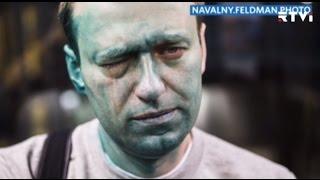 Навальный получил химический ожог глаза в результате нападения с зеленкой