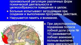 видео Периферический паралич