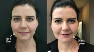 Dermal Fillers | The Laser and Skin Clinic