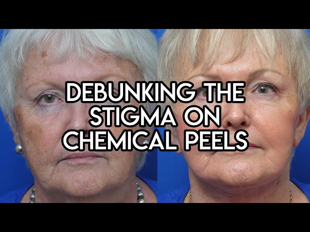 Debunking the Stigma on Chemical Peels
