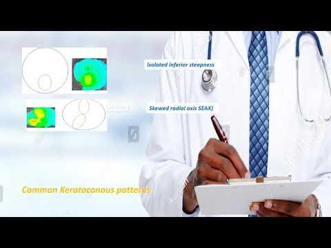 Keratoconus Classification & Indices