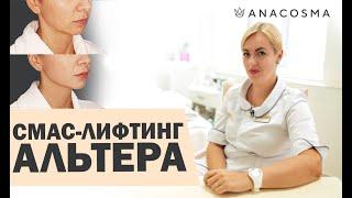 Подтяжка лица без операции | Альтера | смас лифтинг | АНА КОСМО